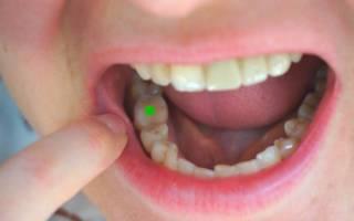 Зуб со штифтом (отмечен)