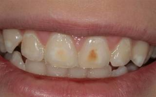 Гипоплазия зубной эмали