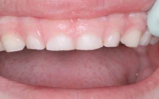 Стертые молочные зубы