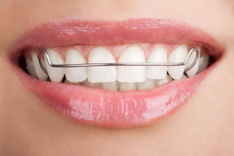 Пластина на зубах
