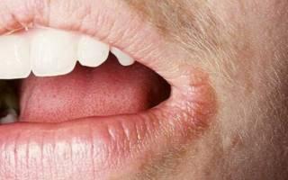 Трещины на губах от вредных привычек