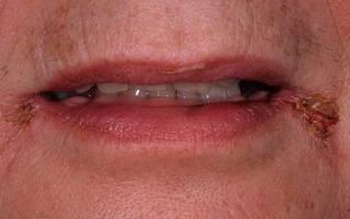 Грибок в уголках губ
