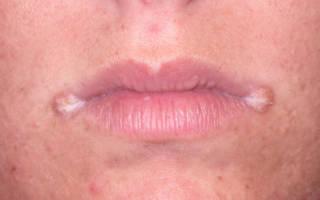 Грибковые поражения в уголках губ