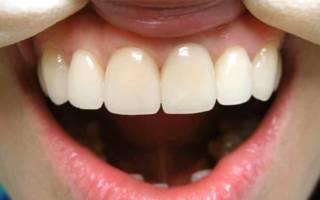 Металлокерамика на передних зубах