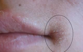 Шелушение в уголках рта