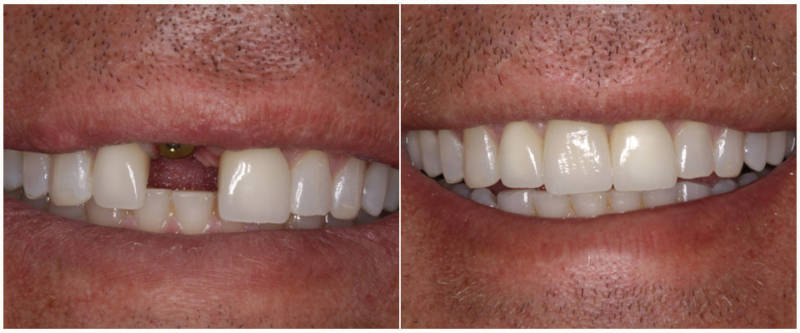 Результат имплантации зубов