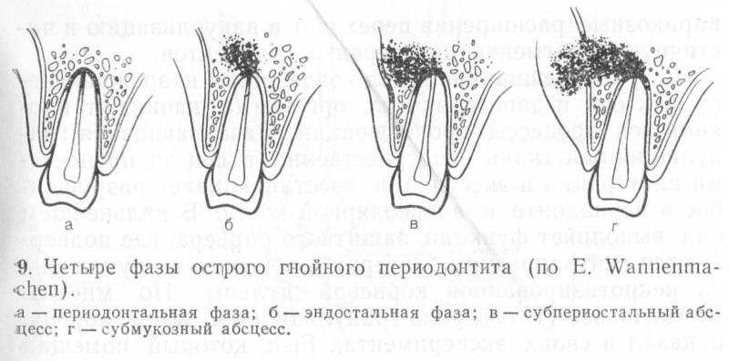 Острый периодонтит