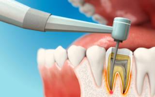 Процесс чистки каналов зуба