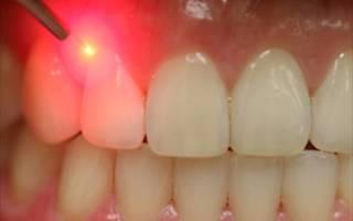 лечение зубов лазером