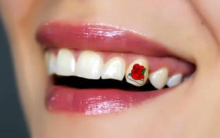 Наклейка цветок на зубе