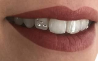 Стразы на зубе