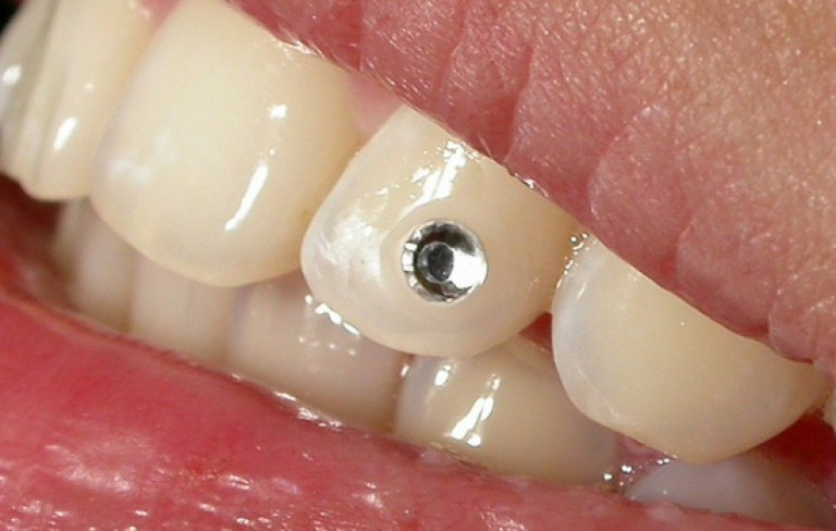 Вмонтированный в зуб скайс