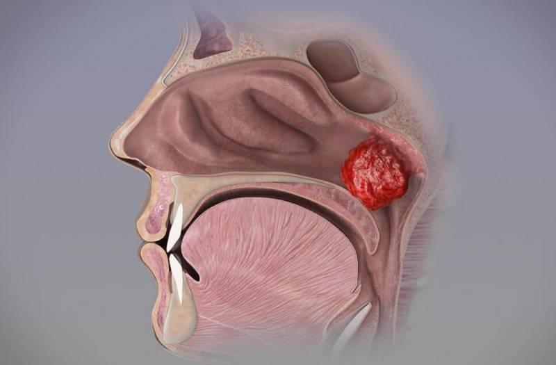 Как снять воспаление носовых пазух