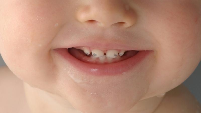 Прорезаются черные зубы