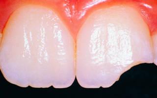 Разрушение зубной эмали