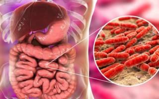 Нарушение микрофлоры кишечника