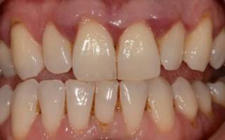 Парадонтит зуба