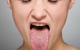 Сухой язык