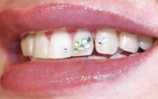 Цветные скайсы на зубах