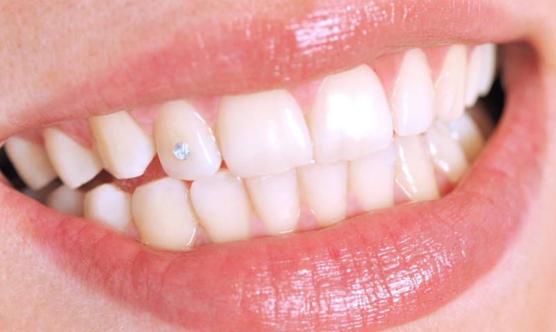 Скайс на зубах