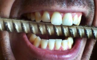 Избыток железа для зубов