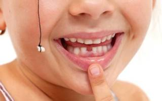 Удаление зуба ниткой