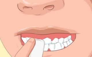 Удаление зуба пальцами в марле