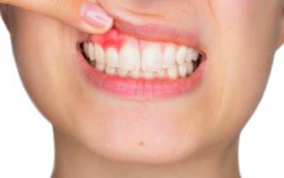 Почему может болеть десна возле зуба и как её лечить