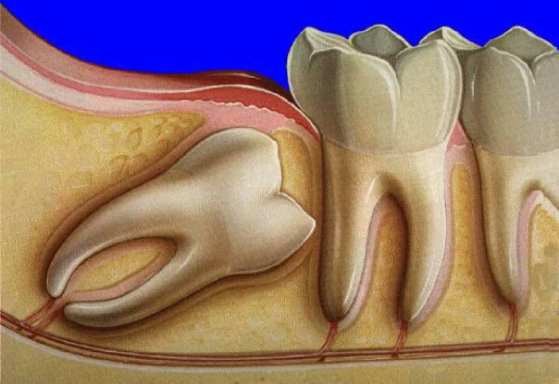 Дистопия зуба мудрости