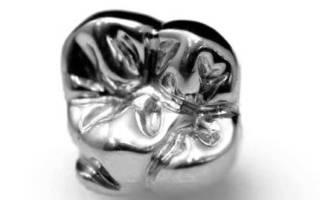 Как выглядит металлическая коронка