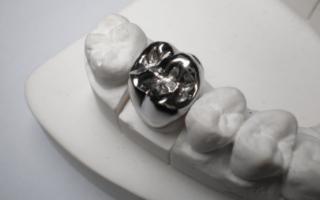Какие бывают металлические коронки на зубы и как их ставят