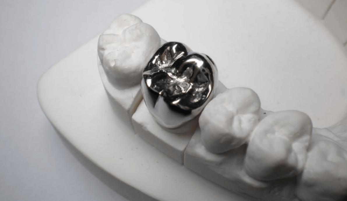 Металлические коронки на зубы с белым покрытием