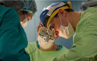 Операция на прикус