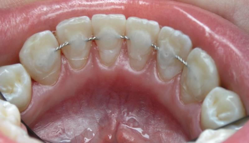 Постоянное шинирование зубов