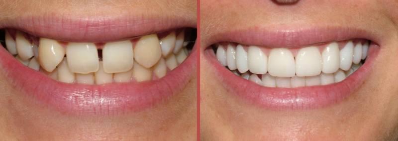 Виниры поставлены на кривые зубы