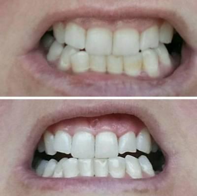 До и после чистки соды