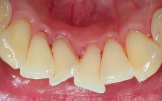 Скученность передних зубов