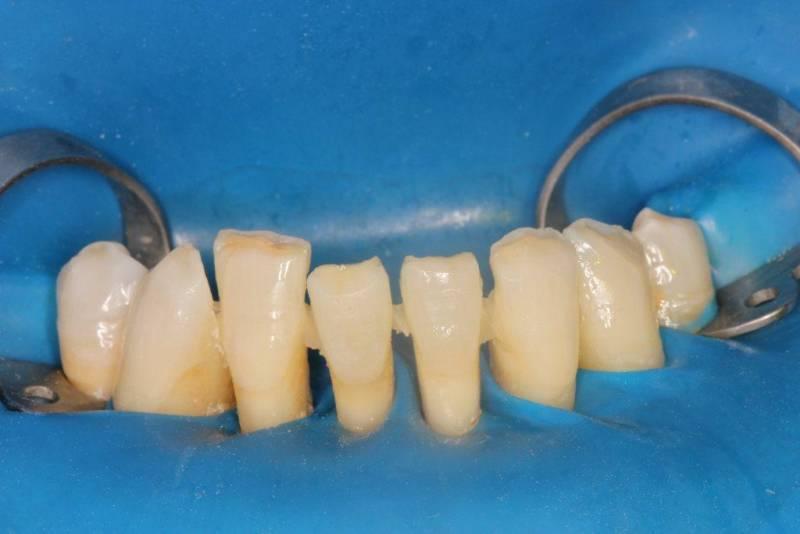 Шинирование подвижных зубов стекловолокном