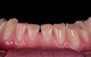 Стертые нижние зубы