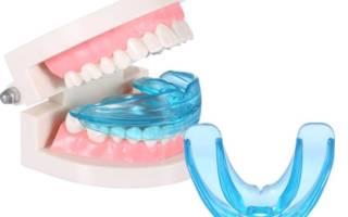 Ортодонтические трейнеры