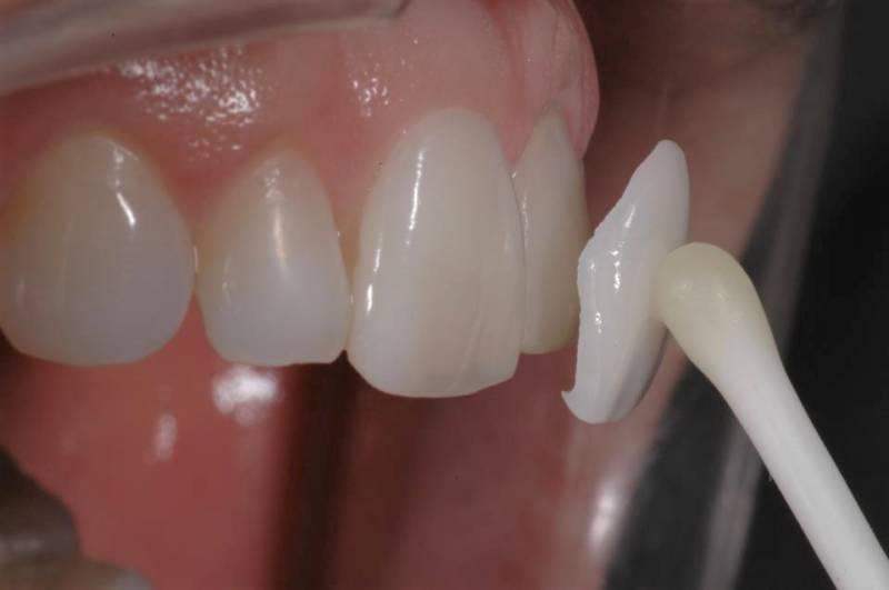 Установка винира на кривой зуб