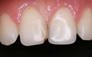 Пораженные кариесом передние зубы