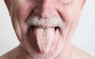 Белый налет на языке у пожилого