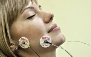 Электрофорез при неврите