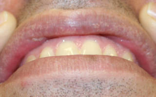 Гранулы Фордайса на внутренней стороне губ
