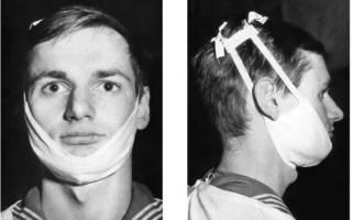 Иммобилизация челюсти