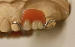 Кламмерное крепление протеза