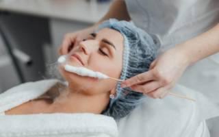 Метод криотерапии