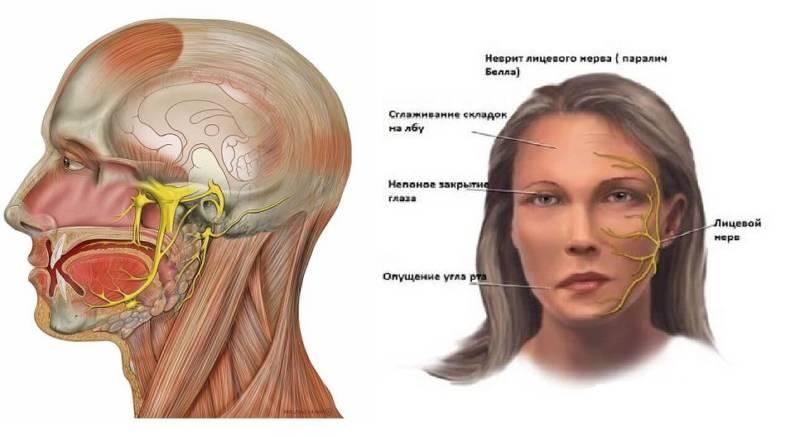Неврит троичного нерва