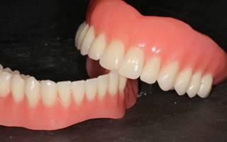 Протезы на разные челюсти